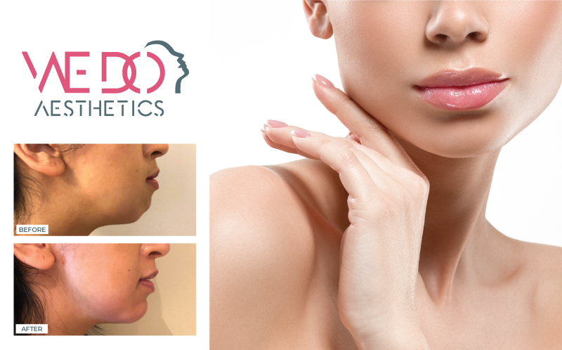 Non-surgical chin augmentation